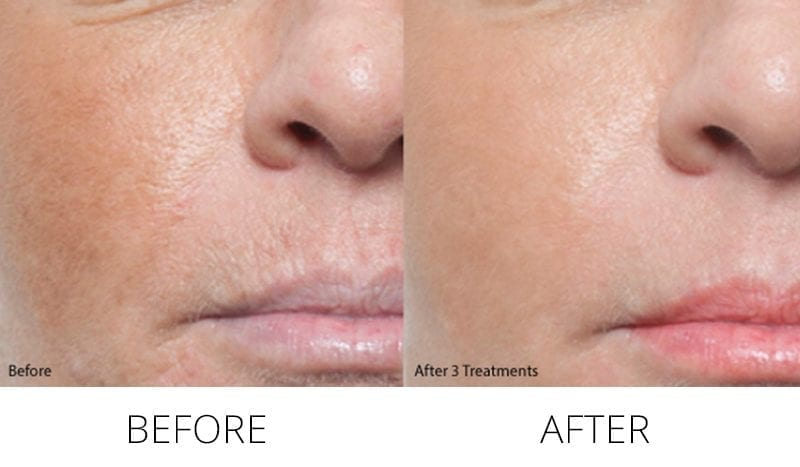 AQUAGOLD Fine Touch Microneedling Treatment